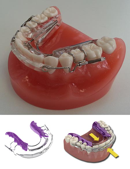 Inman aligner is removable orthodontic braces that gets straight teeth fast in matthews north carolina