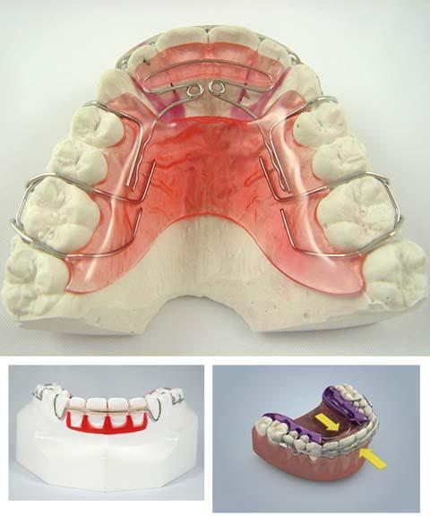 spring aligner matthews north carolina limited orthodontic braces