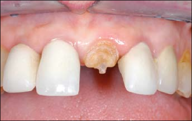 cracked incisor