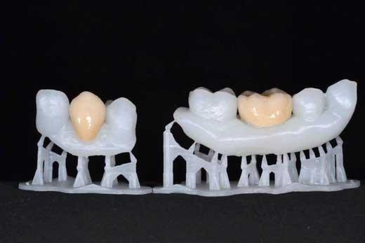 printed dental crowns