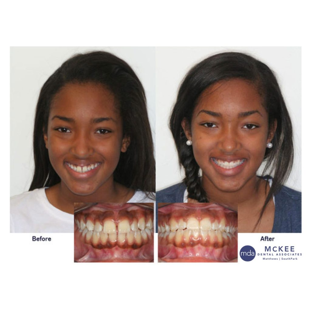 Braces to Straighten Teeth and close Spaces