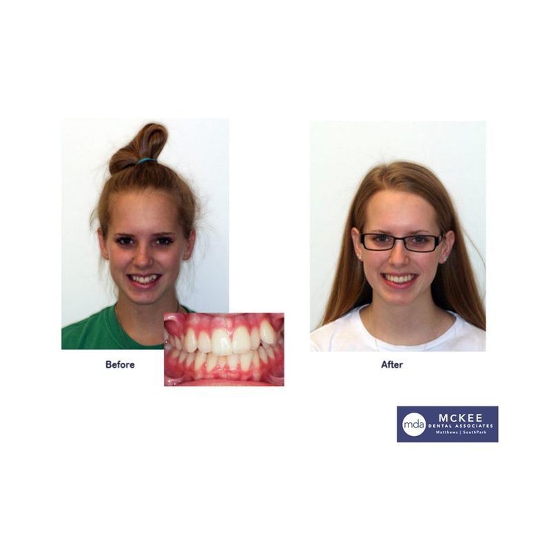 Braces to fix Impacted Canines
