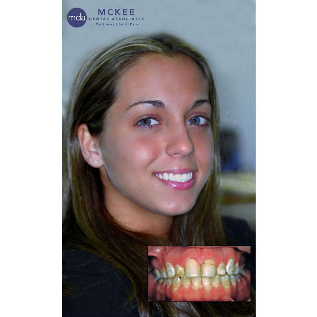 Dental Veneers Replace Bonding