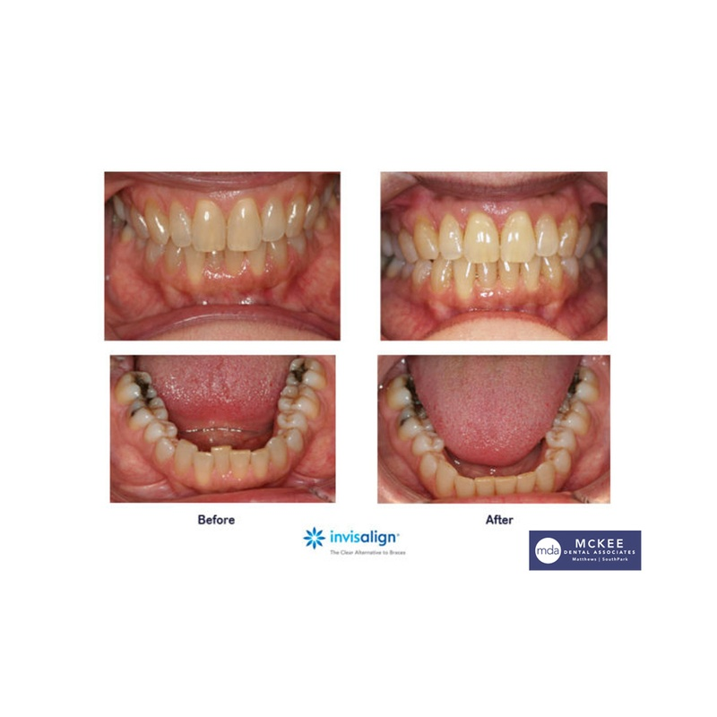 Invisalign Express for Minor Crowding