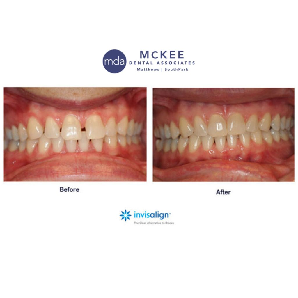 Invisalign process for a Straighter Smile