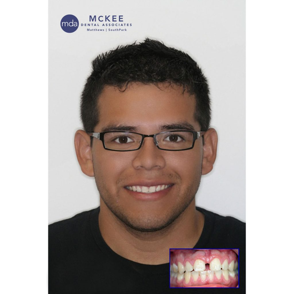 Invisalign to Close A Large Space