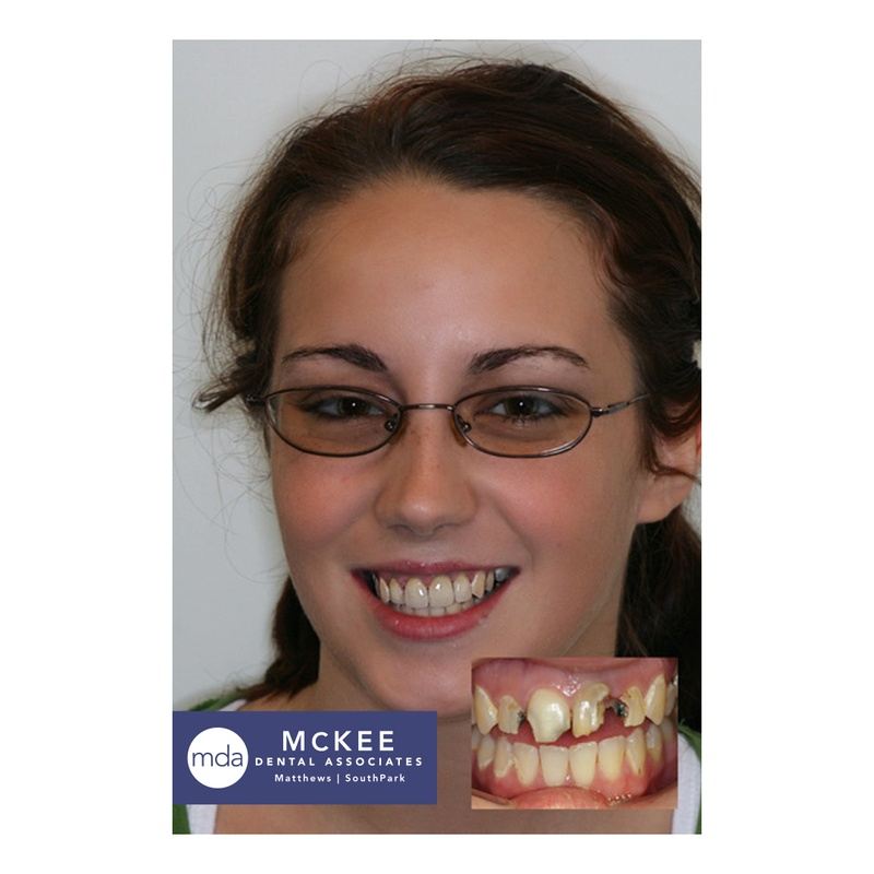 Rebuilding a Dental Smile