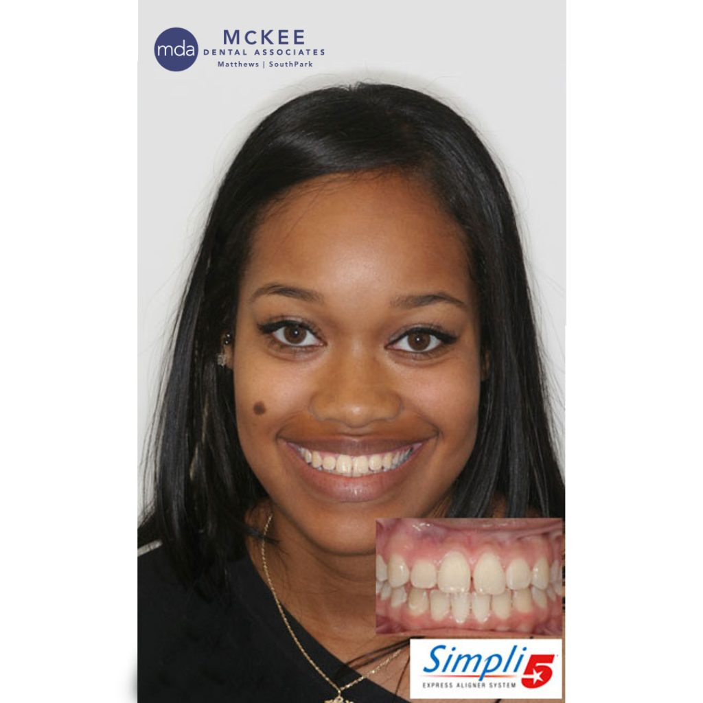 Simply 5 Aligners