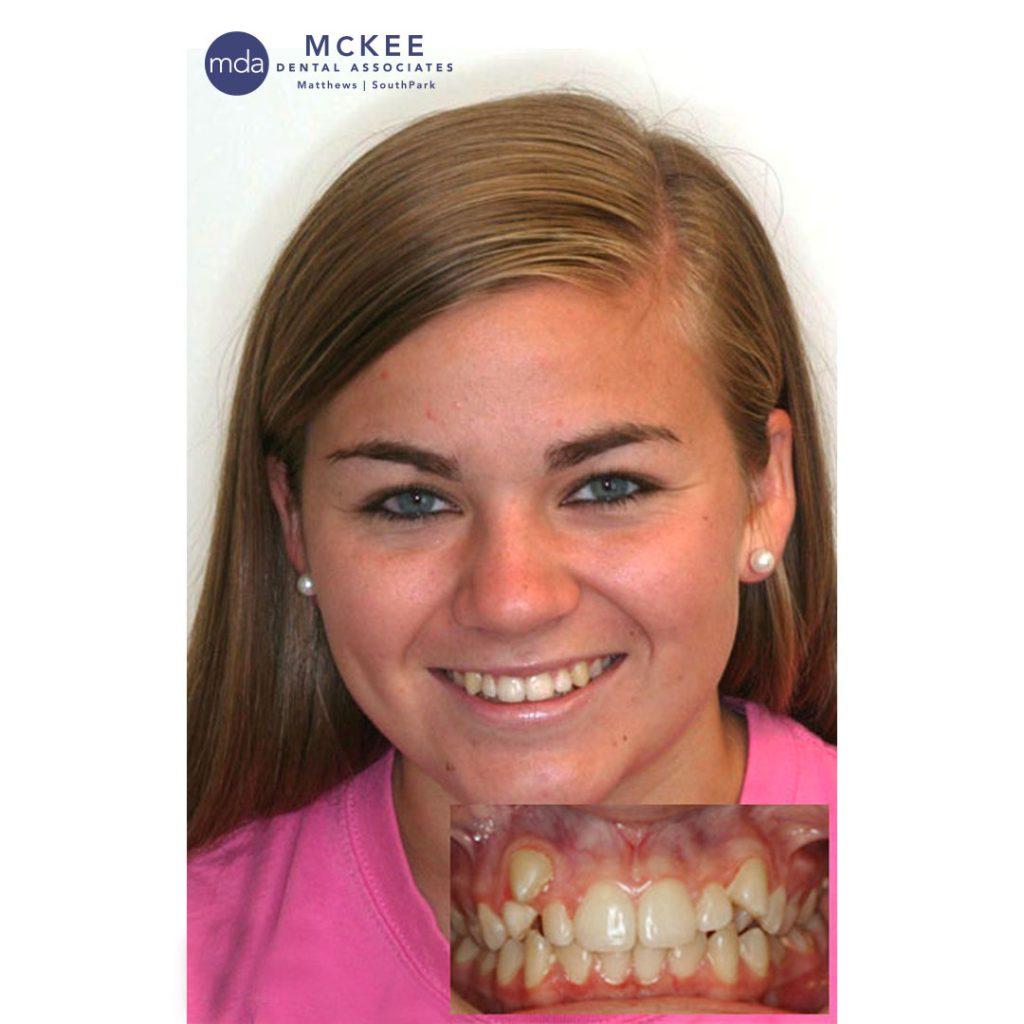 Straight Teeth with Braces