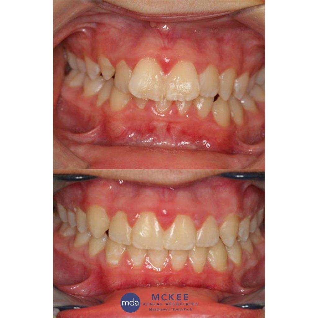 Straight teeth with Esthetibraces