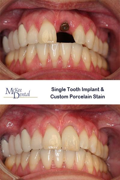 implant001 web