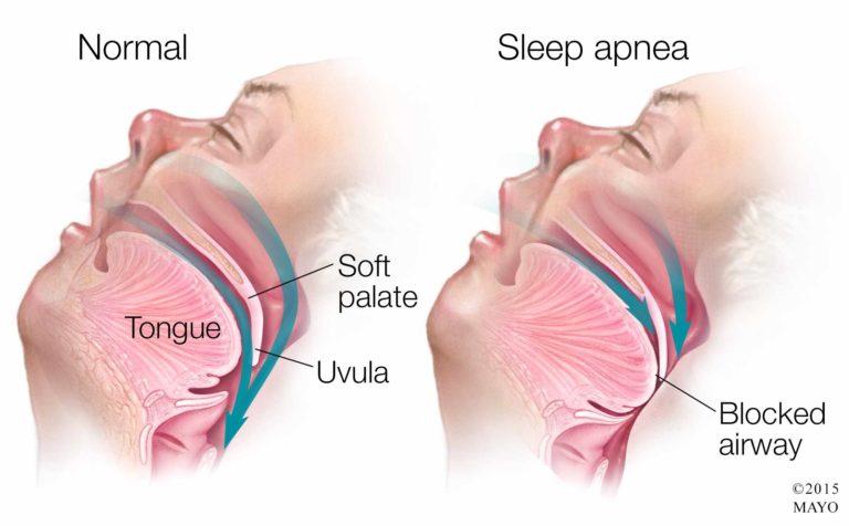 sleep apnea 768x476 1